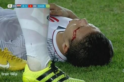Hình ảnh đổ máu của cầu thủ Quang Hải trong trận đấu tứ kết môn bóng đá nam Asiad 2018 khiến nhiều người xót xa