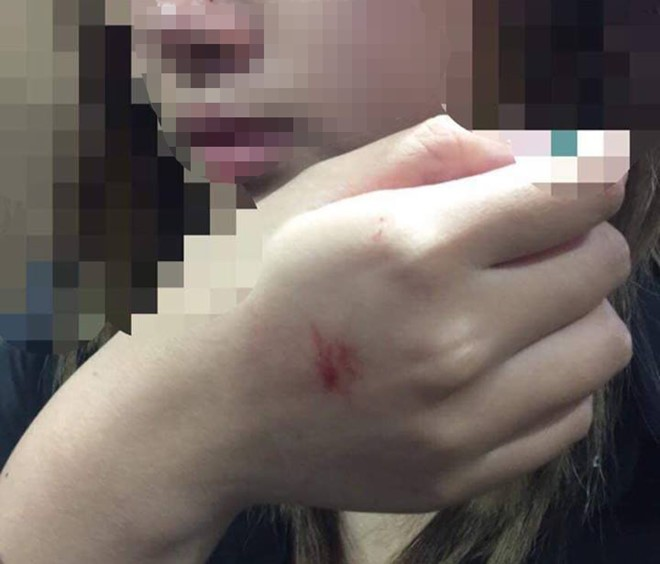 Cô gái trẻ bị xước ở mũi và tay, đồng thời bị hoảng loạn về tâm lý sau sự cố bị sàm sỡ
