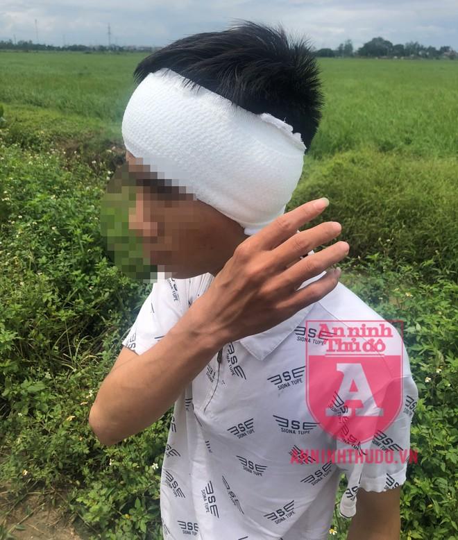 Một nạn nhân bị tên cướp chém vào đầu gây thương tích nặng