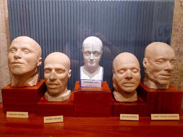 Khuôn thạch cao hộp sọ của các phạm nhân sau khi bị hành quyết