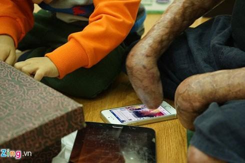 Anh Dương xuất ngũ tháng 9 và ra viện vào giữa tháng 12 năm nay. Trở về cuộc sống đời thường, anh sử dụng điện thoại di động, máy tính bảng để kết nối với bên ngoài. Để có thể làm những việc tưởng chừng đơn giản như ngồi, đọc báo, lướt web, uống trà,… anh Dương phải trải qua quá trình tập luyện phục hồi chức năng gian khó với sự nỗ lực không ngừng nghỉ.