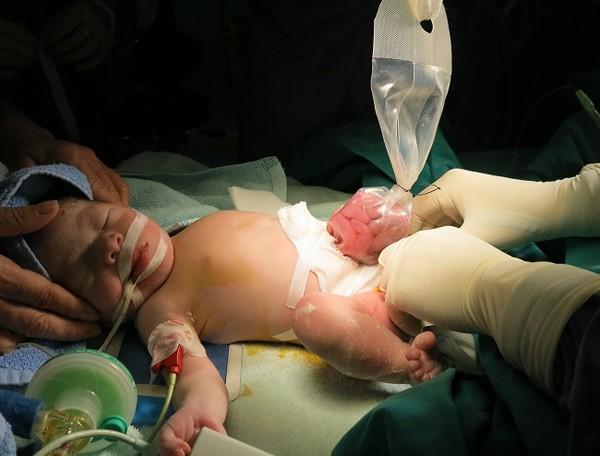 Kíp phẫu thuật đã tiến hành đặt túi silo để dần dần các tạng của bé chui dần vào trong ổ bụng