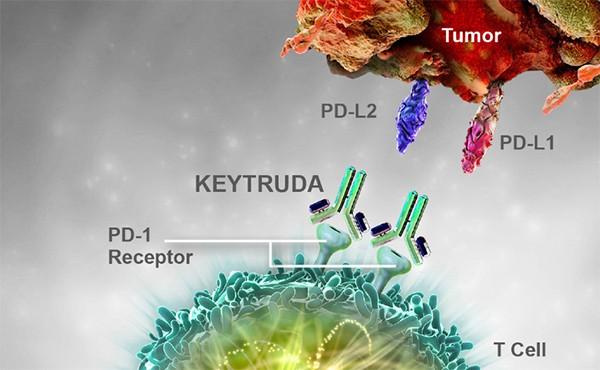 Điều trị u lympho tế bào T/NK bằng thuốc miễn dịch Keytruda mà không có bất kỳ tác dụng phụ nào