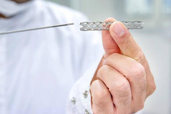 Chi phí stent