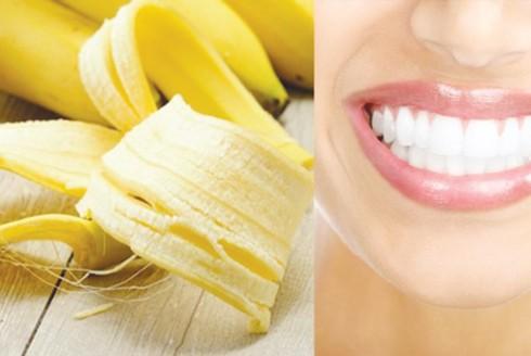 Vỏ chuối chín rất giàu kali có thể giúp làm giảm các mảng bám ố vàng trên răng