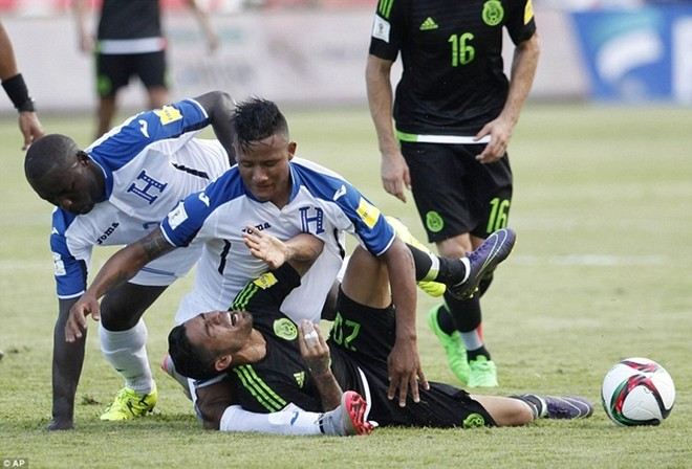 Rợn người chứng kiến cảnh tuyển thủ Honduras bị đối phương đè gãy chân