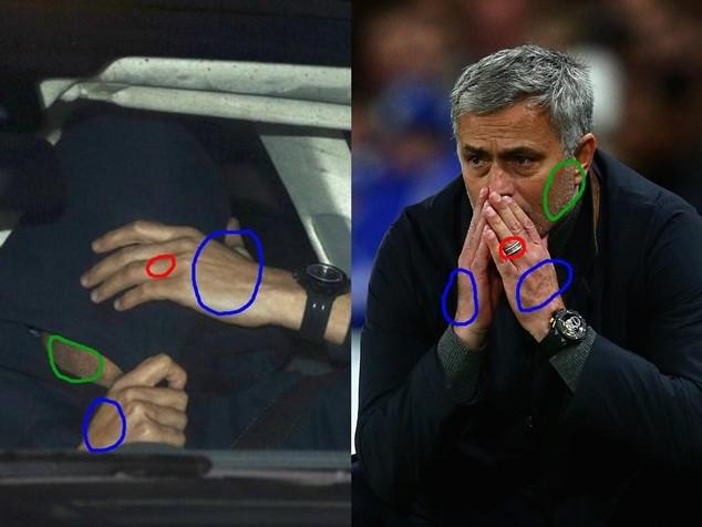 Những điểm khác biệt ở 2 bức ảnh được chỉ ra trong các khoanh tròn
