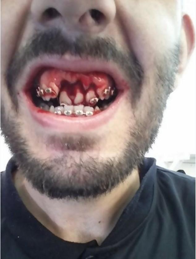 Cầu thủ của Real Jaen mất 3 chiếc răng cửa