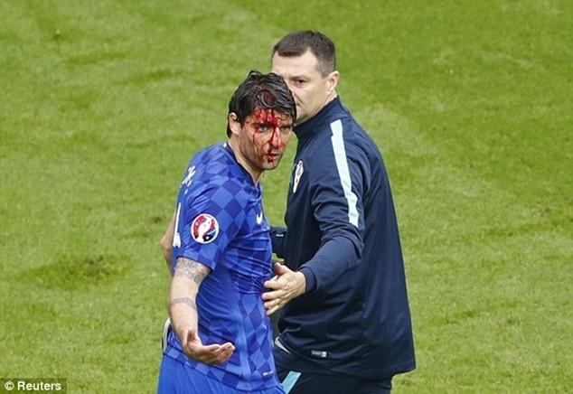 """Corluka của Croatia bị cầu thủ của Thổ Nhĩ Kỳ """"đánh"""" chảy máu đầu"""