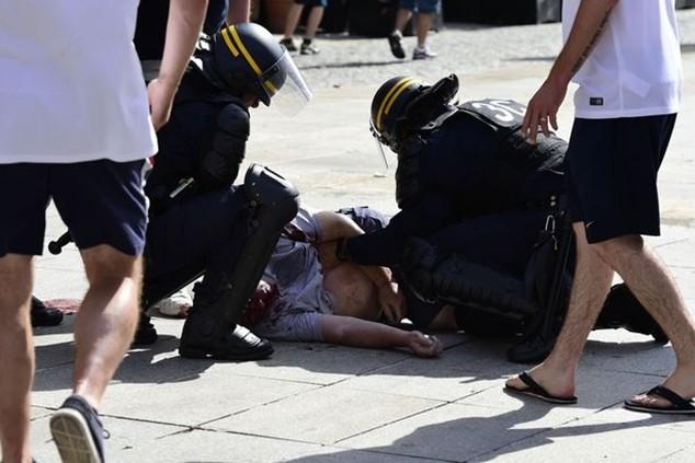 CĐV Anh được sơ cứu ngay trên đường phố trước lúc nhập viện