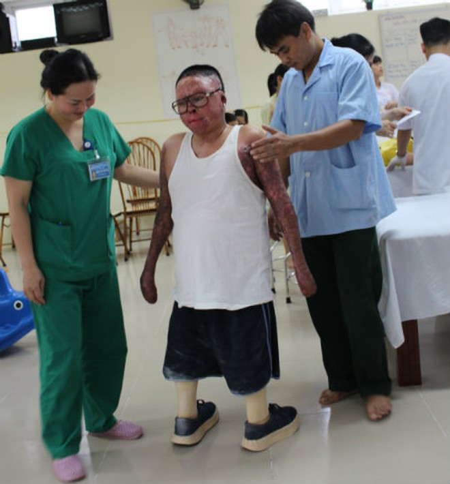 Chiến sĩ Đinh Văn Dương trong quá trình tập đi trở lại. Ảnh: Phượng Hoàng (daibieunhandan.vn)