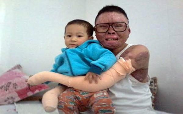Con trai Trung úy Dương vào bệnh viện thăm bố. Ảnh: Phượng Hoàng (daibieunhandan.vn)