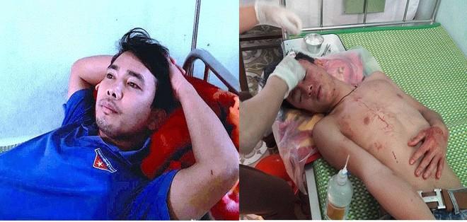 Sở GD&ĐT Nghệ An yêu cầu làm rõ sự việc thầy giáo và học sinh bị đánh ngay tại trường học ảnh 1