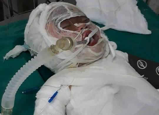 Cháu Linh bị bỏng nặng đang được cấp cứu ở bệnh viện