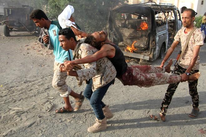 Các đợt không kích của liên quân Saudi Arbia bị cho là làm dân thường thiệt mạng