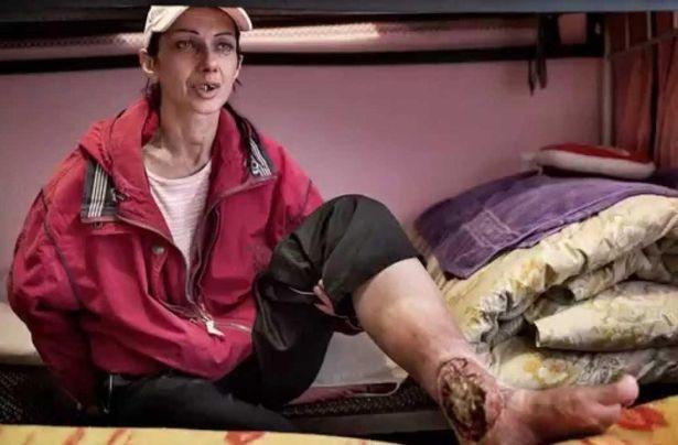 """Công bố những hình ảnh ghê rợn của """"xác sống"""" sau khi nghiện ma túy Krokodil"""