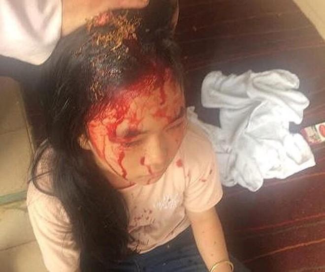 Cháu Kim Chi bị đánh thương vùng đỉnh đầu, máu chảy rất nhiều.
