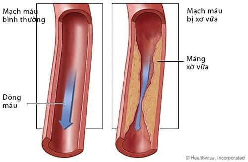 Mỡ máu cao là căn bệnh khiến gia tăng các ca đột quỵ