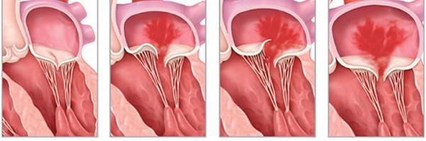 Hở van tim 2 lá có thể do nhiều nguyên nhân như sa van, dãn dây chằng van 2 lá