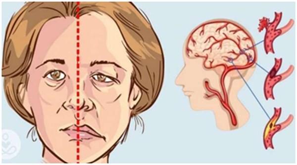 Méo mặt là một triệu chứng của tai biến mạch máu não