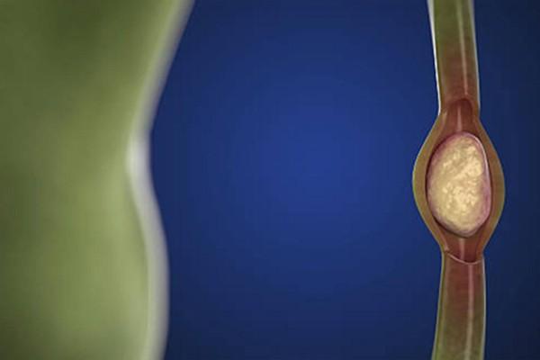 Sỏi nằm ở đường mật có thể gây tắc nghẽn dịch mật, viêm đường mật
