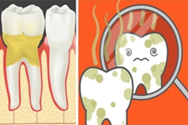 Vệ sinh răng miệng kém là nguyên nhân gây hôi miệng