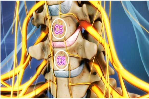Thoát vị đĩa đệm cổ thường xảy ra ở vị trí C5-C6