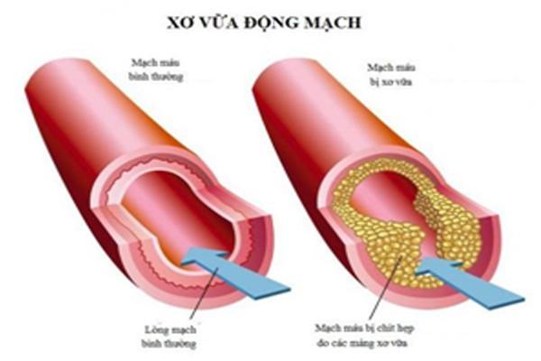 Cholesterol tăng cao gây xơ vữa động mạch