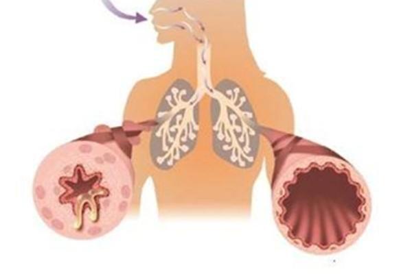 Tái cấu trúc đường thở khiến cho người bệnh ho lâu ngày không khỏi