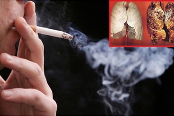 Thuốc lá là nguyên nhân hàng đầu gây ung thư phổi