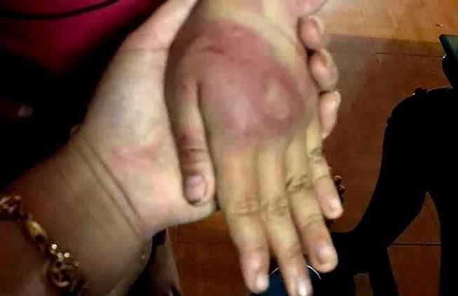 Bé gái 8 tuổi bị bố đánh bầm dập