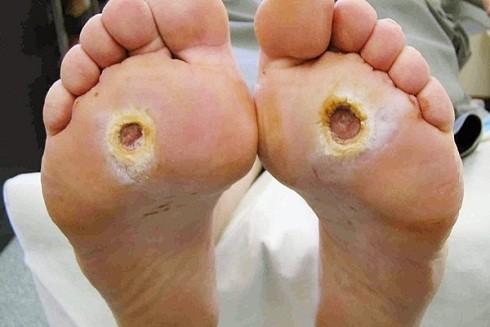 Những triệu chứng, dấu hiệu của bệnh đái tháo đường không thể bỏ qua ảnh 4