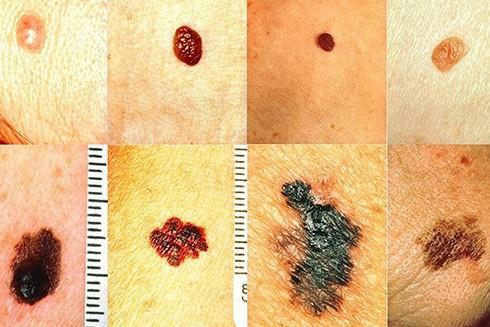 Hãy cảnh giác với các vết bất thường trên cơ thể bởi đó có thể là dấu hiệu của ung thư da