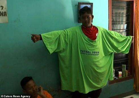 Chiếc áo phông trước kia rộng hơn rất nhiều so với cơ thể ở hiện tại