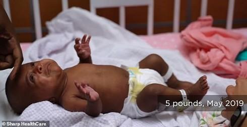 Saybie là em bé sinh non nhỏ nhất thế giới được cứu sống