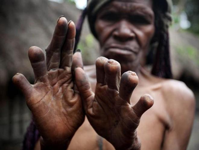 [ẢNH] Giật mình trước những phong tục kỳ lạ của các bộ tộc trên thế giới (phần 2) ảnh 1
