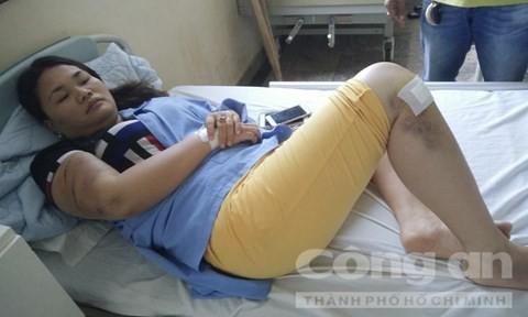 Chị Trang điều trị tại bệnh viện - Ảnh: Chí Dũng