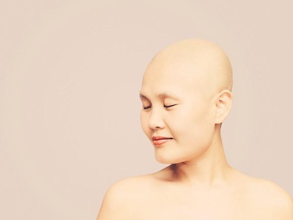 """Thương Sobey - """"người hùng thắp lửa"""" cho hàng triệu phụ nữ ung thư vú, đã yên nghỉ ảnh 7"""
