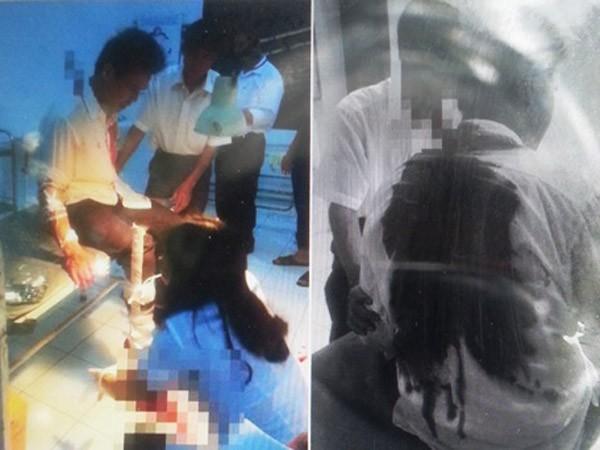 Audio 24-11-2015: Hung thủ đâm dao bầu xuyên gáy lái xe ôm bị bắt ảnh 3