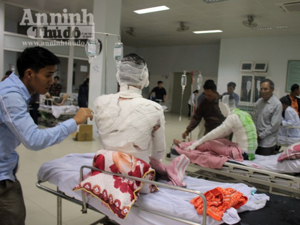 Nổ nồi hơi tại công ty gỗ, 12 công nhân nhập viện cấp cứu ảnh 2