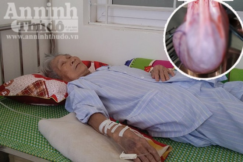 Cụ Tích và khối u nặng 6kg được các bác sỹ cắt bỏ thành công (Ảnh: Bệnh viện cung cấp)