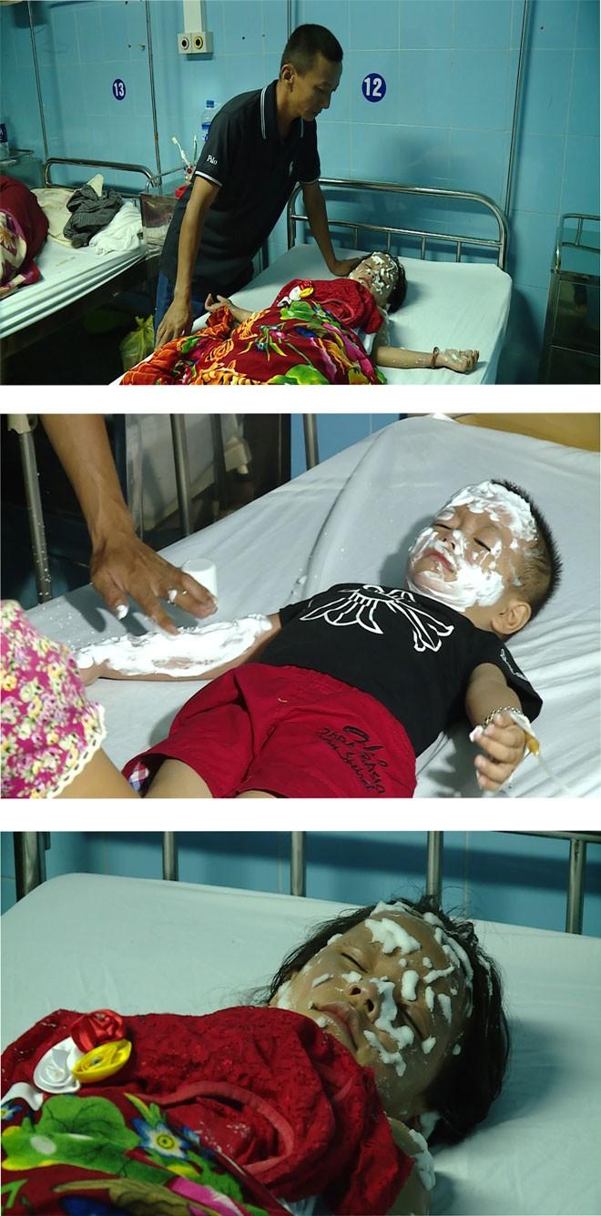 Một số trẻ em bị thương trong vụ nổ bình chứa Hidro ở Quảng Bình đang được cấp cứu, chữa trị ở Bệnh viện hữu nghị Việt Nam-Cu Ba