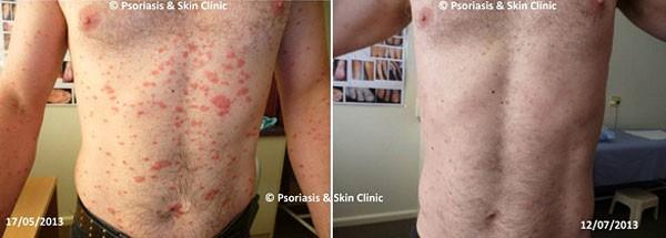 Điều trị bệnh vẩy nến thể giọt bằng phương pháp Dr Michaels trong 8 tuần