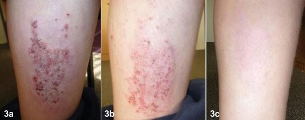 Ảnh 1: Bệnh nhân 13 tuổi điều trị viêm da cơ địa bằng sản phẩm Dr Michaels® Dermatinex trong sau 4 tuần và sau 10 tuần