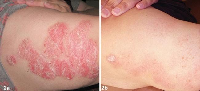 Hình ảnh trước và sau 8 tuần sử dụng sản phẩm Dr Michaels® (Soratinex®)