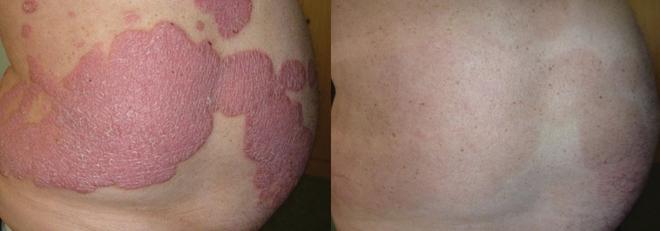 Kiểm soát bệnh vẩy nến thể mảng mạn tính hiệu quả ảnh 2