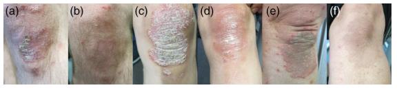 Điều trị hiệu quả bệnh vẩy nến bằng kết hợp thảo dược ảnh 2