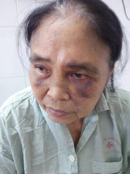 Mâu thuẫn với chồng, vợ dẫn người đánh mẹ chồng chấn thương sọ não ảnh 1