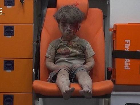 Hình ảnh cậu bé Omran Daqneesh khiến nhiều người ám ảnh.