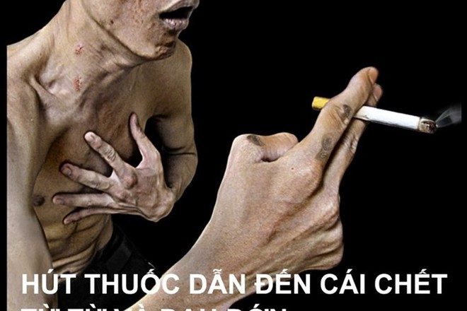 Các chuyên gia ủng hộ việc tăng thuế 5 nghìn đồng/bao thuốc lá